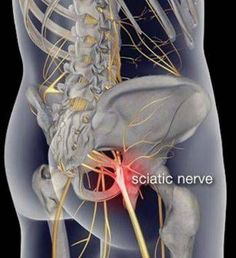 Pain Relief: Want to cure that sciatica pain for good? Heres th...