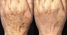 Voici un remède naturel à base de riz brun, de sirop d'agave et de citron pour éliminer les taches brunes disgracieuses qui apparaissent avec l'âge.
