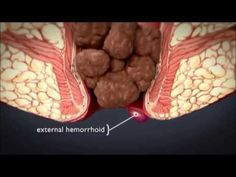 Things that help relieve hemorrhoid symptoms: ~Discover How to ...