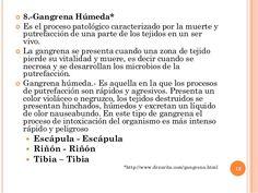  8.-Gangrena Húmeda*  Es el proceso patológico caracterizado por la muerte y putrefacción de una parte de los tejidos en...