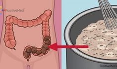 Watch This Video Daunting Home Remedies for Natural Colon Cleansing Ideas. Inconceivable Home Remedies for Natural Colon Cleansing Ideas. Homemade Colon Cleanse, Natural Colon Cleanse, Colon Detox, Ginger Benefits, Health Benefits, Health Tips, Colon Cleanse Before And After, Sistema Gastrointestinal, Combattre Le Stress