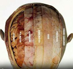 Brain Anatomy, Human Body Anatomy, Medical Anatomy, Human Anatomy And Physiology, Medical Facts, Medical Science, Medicine Notes, Medical Illustration, Medical Students