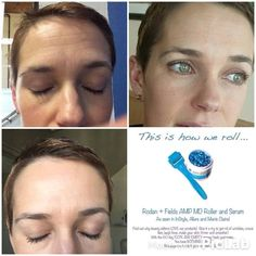 This little tool is second to NONE! Check out fellow consultant Holly's progress from using the AMP MD Roller with our Night Renewing Serum! Get yours ordered today!! https://iarman.myrandf.com/Shop/Product/AAAPS01