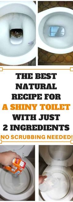 The Best Natural Recipe For A Shiny Toilet With Just 2 Ingre.- The Best Natural Recipe For A Shiny Toilet With Just 2 Ingredients – No Scrubb… The Best Natural Recipe For A Shiny Toilet With Just 2 Ingredients – No Scrubbing Needed! Good Health Tips, Natural Health Tips, Natural Health Remedies, Healthy Detox, Healthy Tips, Health Diet, Health Fitness, Wellness Fitness, Key Health