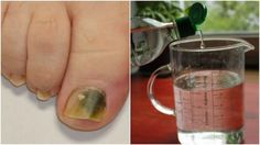 Combat Nail Fungus With This Natural Three-Ingredient Recipe - Living Well Ear Reflexology, Three Ingredient Recipes, Homemade Shampoo, Purifier, Liquid Measuring Cup, Nail Fungus, Recipe Today, Healthy Tips, Home Remedies
