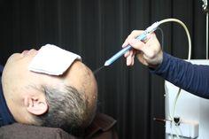 マイクロジェット噴流により頭皮の毛穴に詰まった皮脂角栓、 老廃物を根こそぎ除去します。毛穴の汚れを根本から取り除くこと でその後の育毛剤が確実に毛根まで届きます。また、リンパの流れ をスムーズにし血液循環を良くすることで酸素・栄養を流れやすく します。