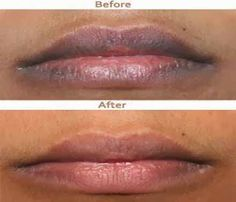 Post from: beautytips4her.com Please LIKE Beauty Tips 4 Her On Facebook so you don't miss a post. Overlooking details is a surefire way of ...