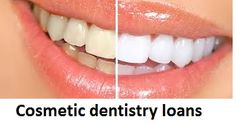 Cosmetic dentistry loans are available for all those who are living as tenants. Here, you are not required to give the hold of your priced assets to the lenders.