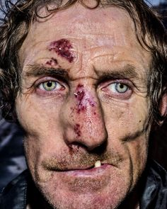 Pain is skin deep: Extreme close-up portraits of people on the edge Close Up Portraits, Beach Portraits, Amazing Photography, Portrait Photography, Extreme Close Up, Street Portrait, Face Reference, Photographs Of People, Face Men