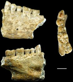 Neolithic Beeswax Dental Filling May Be Oldest Found