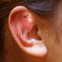 Ear Piercing Infection Read:  http://www.epainassist.com/earache-or-ear-pain/ear-piercing-infection-causes-treatment-home-remedies-preventive-measures