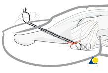 Small volar P3 fragment
