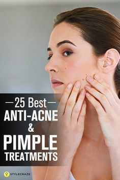 25 Best Anti-Acne And Anti-Pimple Creams Available In India – 2019 25 besten Anti-Akne-und Pickel-Cremes [& The post 25 besten Anti-Akne-und Anti-Pickel-Cremes in Indien & 2019 & Acne appeared first on Skin Care. Oily Skin Treatment, Back Acne Treatment, Acne Treatments, Acne Rosacea, Acne And Pimples, Acne Skin, Anti Pickel Creme, Pimple Cream, Recipes