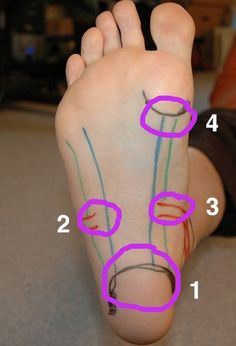 Great video for self treatment of plantar fasciitis and other foot pain.