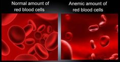 Anemia and fertility