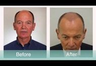 What will happen three months after a FUE hair transplant in Turkey? Find the answer in this article: http://www.hair-transplant-turkey.org/three-months-after-fue-hair-transplant-what-to-expect.