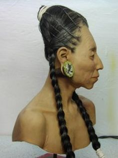 Image result for facial reconstruction peru elongated