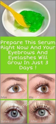 Prepare This Serum Right Now And Your Eyebrows And Eyelashes Will Grow In 3 Days Aloe vera gel, castor oil, vitamin E oil How To Grow Eyelashes, Longer Eyelashes, Eyebrows Grow, False Eyelashes, Fake Lashes, Fake Eyebrows, Thicker Eyelashes, Skin Care, Natural Remedies