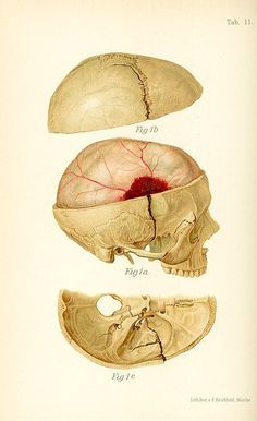 EPIDURAL HEMATOMA, FORM VINATE MEDICAL ILLUSTRATION ATLAS BY HEINRICH & JOSEPH COLT BLOODWOOD 1902. FOUND ON FYMD.TUMBLR