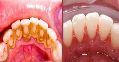 Video shows 3 best ways to remove teeth plaque or tartar at home without visiting a dentist for your dental cleaning. Remedies For Strong and White Teeth: ht. Health And Beauty Tips, Health Tips, Home Remedies, Natural Remedies, Teeth Whitening, Baking Soda, The Cure, Beauty Hacks, Food And Drink