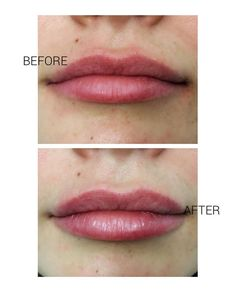 Lippies ready for Valentine's Day!  . Only 0.5 mL Juvederm Ultra Plus was use...