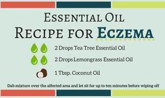 Essential Oil Recipe for Eczema
