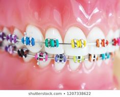 Close up orthodontic model and dentist tool – demonstration teeth model of multi…, … - Saude Bucal Braces Cost, Braces Tips, Kids Braces, Dental Braces, Teeth Braces, Dental Care, Braces Smile, Braces Problems, Dental Problems