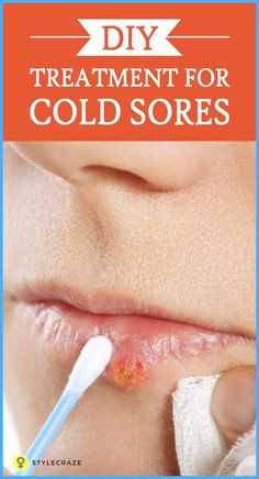 Cold stages abreva sore