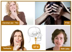 ST 6 is amazing to treat clenched jaw, jaw pain, toothache, Bells' Palsy and for those with long standing Post Traumatic Stress Disorder, due to childhood trauma.