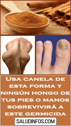 Home Remedies Natural Remedies Pedicure Diabetes Health Tips Beauty Hacks Gusto Cantaloupe Baking Soda Home Remedies, Natural Remedies, Fitness Workout For Women, Birthday Cupcakes, Body Works, Baking Soda, Health And Beauty, Tapas, Health Tips