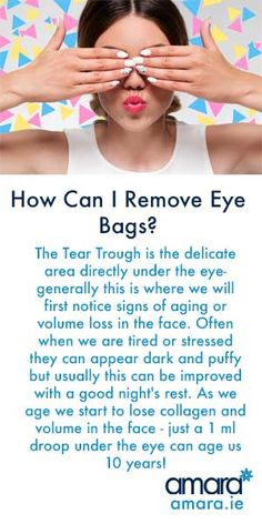 Dark Circles & Eye Bags| How Can We Remove The Unwanted Christmas Present?