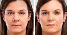 How do face exercises really work in the quest for a holistic non-invasive facelift? Trim wrinkles and tighten saggy face skin using facial toning workouts Face Lift Exercises, Toning Exercises, Fitness Exercises, Facelift Without Surgery, Creme Anti Rides, Facial Yoga, Les Rides, Sagging Skin, Aging Process