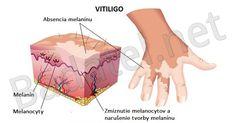 Vitiligo dnes trápi veľmi veľa ľudí a jeho psychologický efekt na človeka je drvivý. S týmito 22 prírodnými terapiami ho určite porazíte.