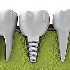 Guess What Dental Implant Prices Are in Taylorsville Implants Dentaires, Dental Implants, Dental Hygienist, Portugese Custard Tarts, Le Mal A Dit, Chamomile Growing, Modern Shag Haircut, Woodworking Magazine, Popular Woodworking