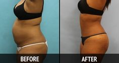 The Most Powerful Drink for a Flat Belly in Just 7 Days - http://nifyhealth.com/the-most-powerful-drink-for-a-flat-belly-in-just-7-days/