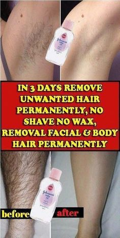remove unwanted hair permanently/remove unwanted hair/remove unwanted hair with vaseline/remove unwanted hair naturally/remove unwanted hair permanently bikinis/Remove Unwanted Hair/ #HairRemovalOptions #UnwantedHairRemovalInKannada #UnwantedHairRemovalSerum #HairRemovalMethods Permanent Facial Hair Removal, Chin Hair Removal, Remove Unwanted Facial Hair, Hair Removal Diy, At Home Hair Removal, Hair Removal Methods, Unwanted Hair, Electrolysis Hair Removal, Ingrown Hair Removal