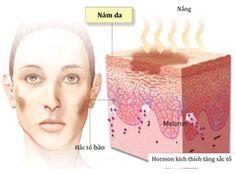 Để trị nám dứt điểm và hiệu quả bạn cần có những hiểu biết về nám da. Bài viết này sẽ chia sẻ cho ban nhưng thông tin cần thiết về nám da và cách điều trị nám da hiệu quả.