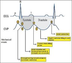 """CVP waveforms with corresponding cardiac events and ECGFigure CVP waveforms with corresponding cardiac events and ECG """"It has literally changed my life."""" - Laura M ECG Mastery More This pic might help, shows you. Medical Surgical Nursing, Cardiac Nursing, Nursing Mnemonics, Cardiac Sonography, Nursing School Notes, Emergency Medicine, Pharmacology, Nursing Students, Physiology"""