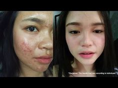 Frontrow soap is the best skin whitening soap that works in 14 days. Frontrow soaps are the most effective whitening soap for the face and body. How To Whiten Clothes, Skin Whitening Soap, Acne Scars, Pimples, How To Get Rid, Good Skin, Face And Body, Anti Aging, Told You So