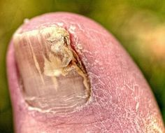 Toenail fungus is a very embarrassing condition because it practically disintegrates the toenail. Read on to know about the simple natural toenail fungus remedies that you could apply on your own. But be sure to consult your doctor first, Holistic Remedies, Homeopathic Remedies, Natural Home Remedies, Natural Healing, Health Remedies, Natural Skin, Toenail Fungus Remedies, Health Tips, Beauty Tips