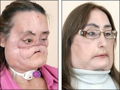 In 2004, Connie Culp lost much of her face from a gunshot blast. Four years later, the 46-year-old mother was the first to undergo face transplant surgery in the U.S. This image shows Culp before the surgery (left) and in 2009, six months after the surgery