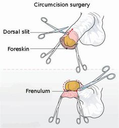 96% of routine infant circumcisions in the U.S. are performed with little to no anesthesia.    Look at the diagram below and tell me that wouldn't be the worst possible pain ever imaginable!