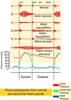 Heart Murmurs. #cardiology Enlarge: pinterest.com/pin/287386019942705016