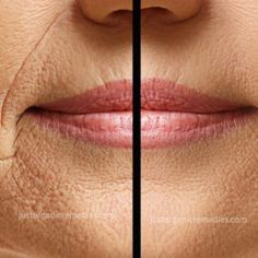 How To Get Rid Of Wrinkles With This Amazing Face Toner | Healthy Eon
