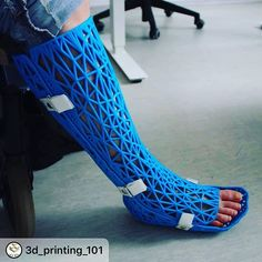 Orthosis to replace plaster casts - aids in the healing of scars after surgery, and allows the patient to shower since it is waterproof. Bunker, Classic Wall Paint, Leg Cast, Plaster Cast, 3d Printing Industry, 3d Printing Service, Parametric Design, Large Prints, Inventions