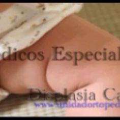 Displasia de Cadera en Niños - Atencion inmediata. Unidad Especializada en Ortopedia y Traumatologia en Bogota - Colombia PBX: 6923370 www.unidadortopedia.com