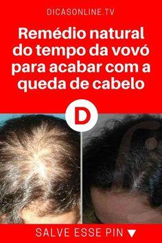 Cabelo queda | Remédio natural do tempo da vovó para acabar com a queda de cabelo | Esse é um remédio caseiro muito eficiente contra a queda de cabelo. Leva apenas 4 ingredientes, são baratos e fáceis de encontrar. Experimente já!