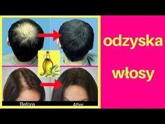 Twoje włosy wzrosną jak szalone Jedz 3 łyżki dziennie - YouTube