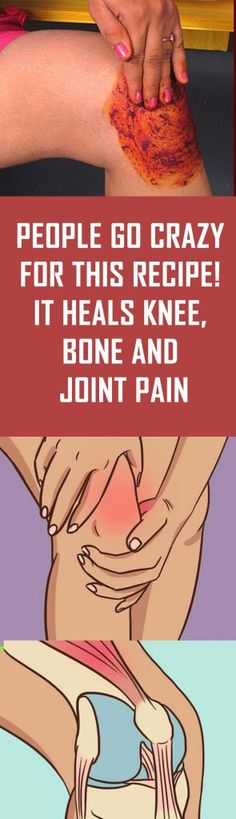 People Go Crazy For This Recipe! It Heals Knee, Bone and Joint Pain People Go Crazy For This Recipe! It Heals Knee, Bone and Joint PainPeople Go Crazy For This Recipe! It Heals Knee, Bone and Joint Pain June Natural Home Remedies, Natural Healing, Holistic Healing, Knee Bones, Leg Pain, Foot Pain, Bone And Joint, Hygiene, Health Remedies
