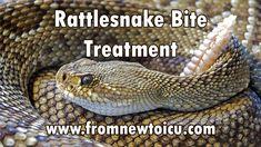 Rattlesnake Bite Treatment